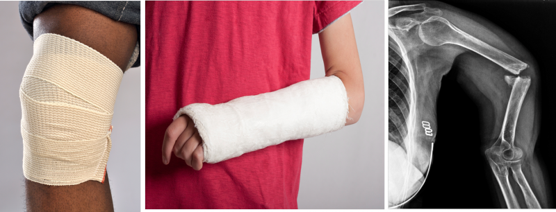 Knee in cast; arm in cast; x-ray of broken arm